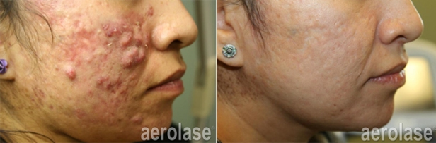 acne-8-pair